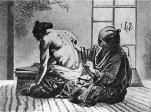 акупунктура, китай, история