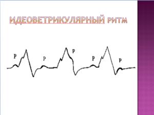 Идеовентрикулярный ритм
