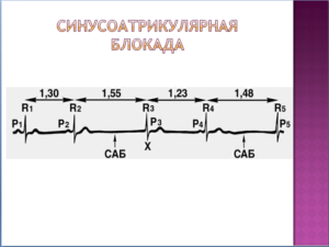 Синусоатрикулярная блокада