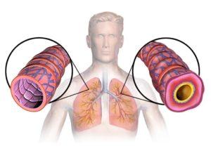 Бронхиальная астма, аллергия
