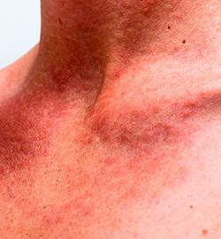 Солнечная крапивница, Аллергические реакции