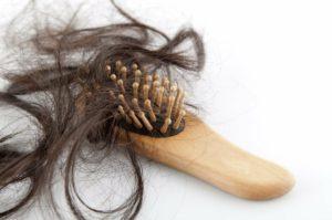 волосы, выпадение