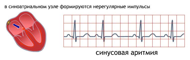 Синусовая аритмия