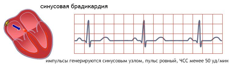 Синусовая брадикардия (аритмии)