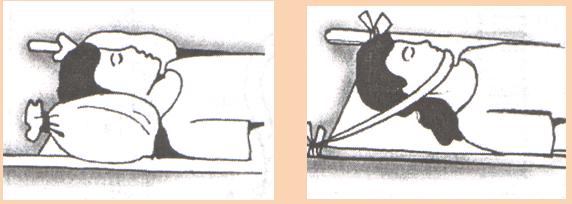 ПДП при Переломе шейных позвонков