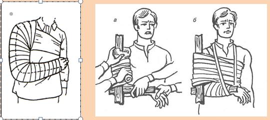 Перелом плеча