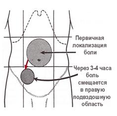 Признаки аппендицита. ПДП.