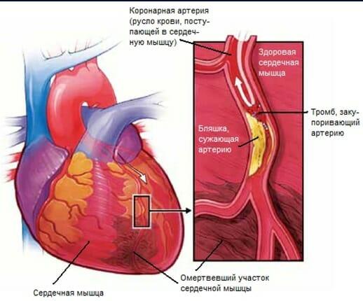 Острый инфаркт миокарда. ПДП.