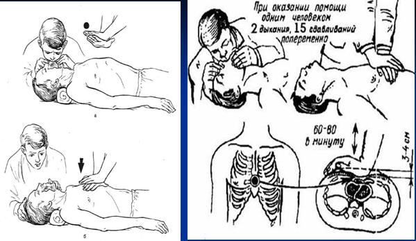 ПДП. Непрямой массаж сердца