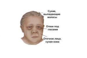Патология щитовидной железы, микседема
