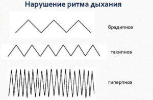 Нарушение ритма дыхания