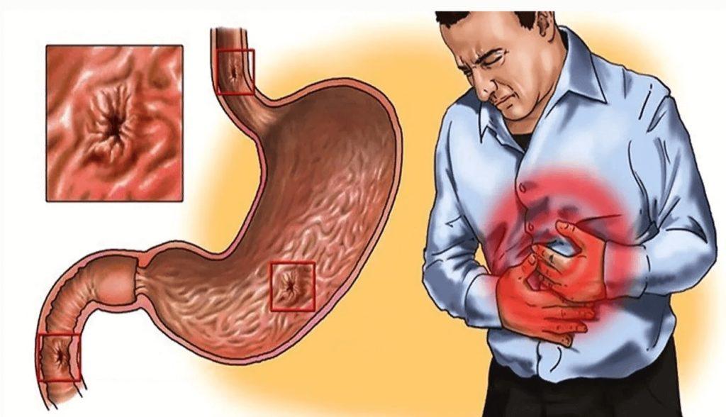 Симптомы гастрита и язвы