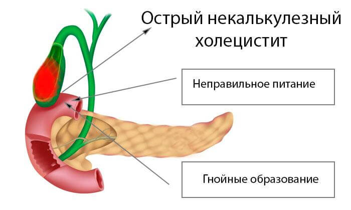 Некалькулезный холецистит